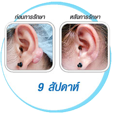 Procedure-Keloid-9weeks.png