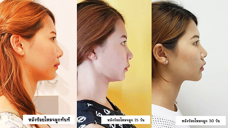 what-hot-nose-surgery-1.jpg