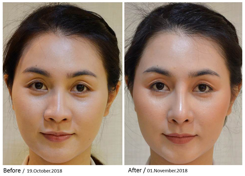 what-hot-nose-surgery-2.jpg