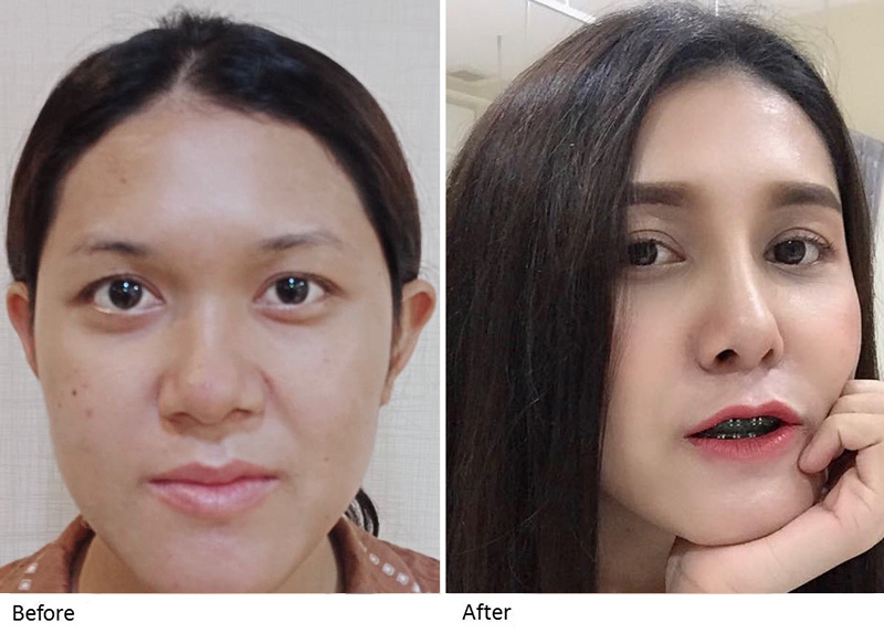 what-hot-nose-surgery-3-(1).jpg