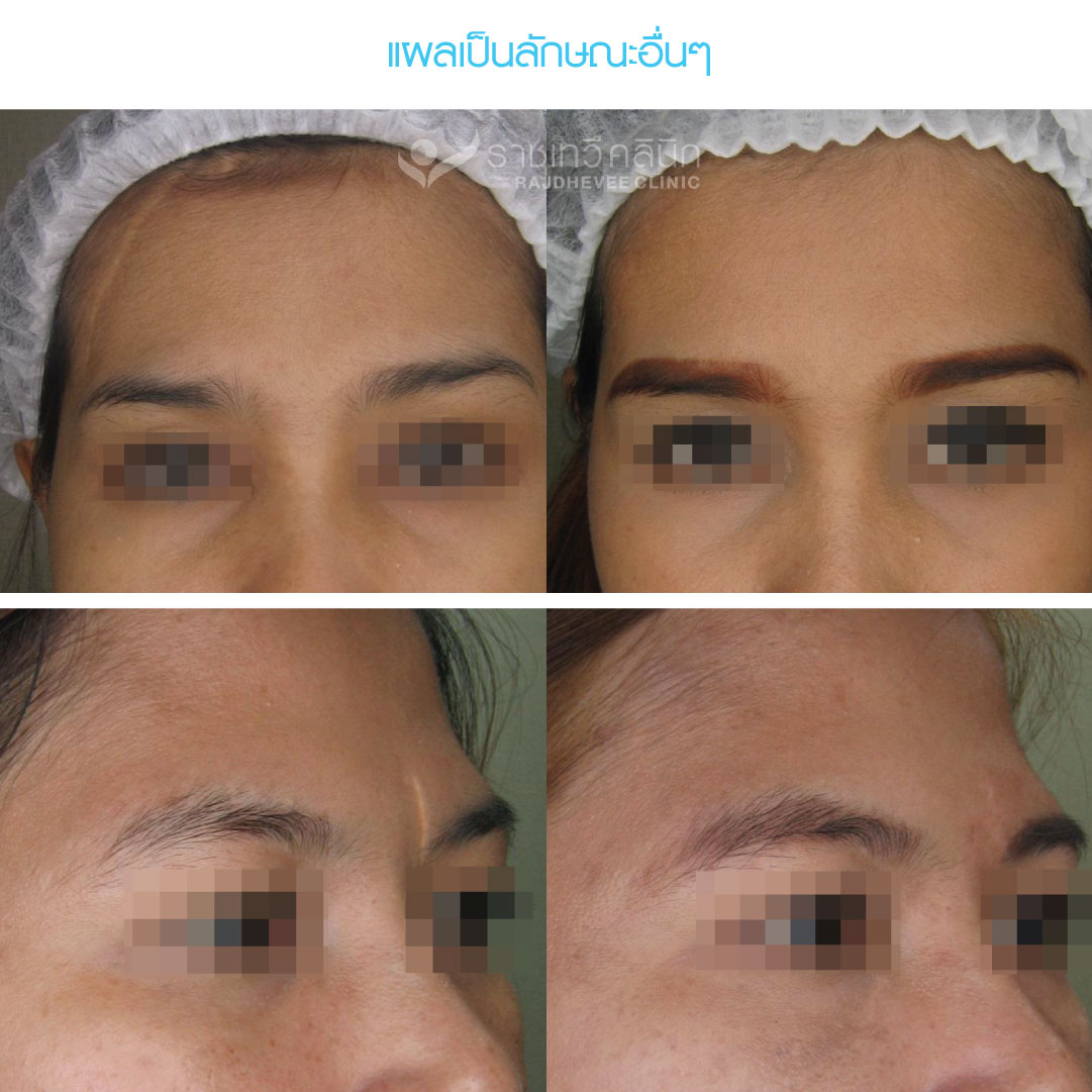 Abnormal Scar การรักษาแผลเป็นที่มีรูปร่างผิดปกติ